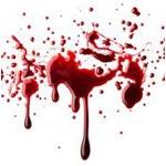 Sapnuoti daug kraujo